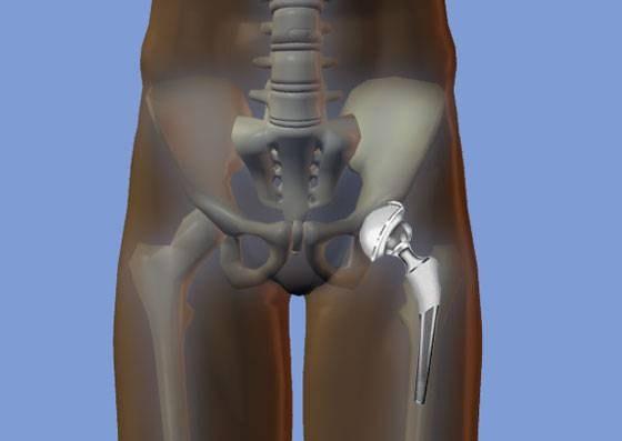Эндопротезирование тазобедренного сустава-полная стоимость видов дисплазии суставов проявляющаяся врождённой неполноценностью сустава