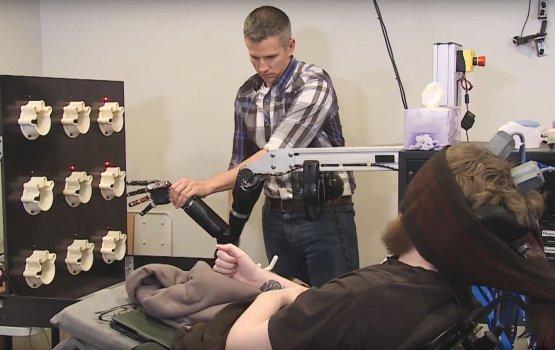 Вживленные в мозг датчики позволили парализованному пациенту ощутить прикосновения к искусственной руке