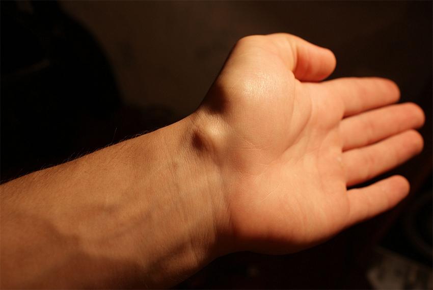 Гидрома от сустава лечение суставов народ средств
