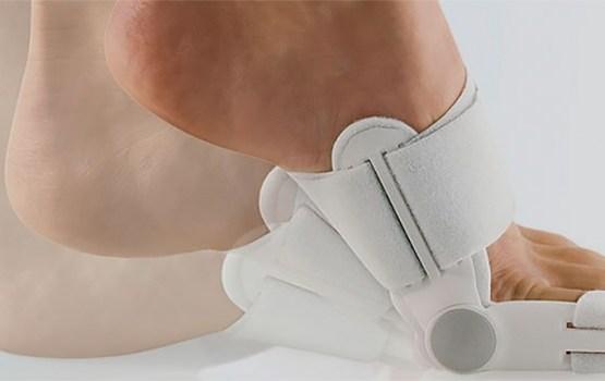 Hallux valgus, или «Косточки» на ногах