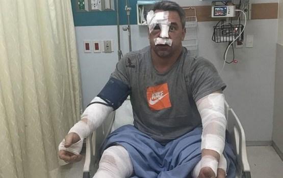 Латвийский тяжелоатлет Виктор Щербатых попал в тяжелую аварию