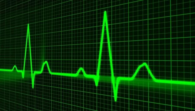 Нет врачей со знанием латышского: в Латвии простаивает спецоборудование по спасению инсультников